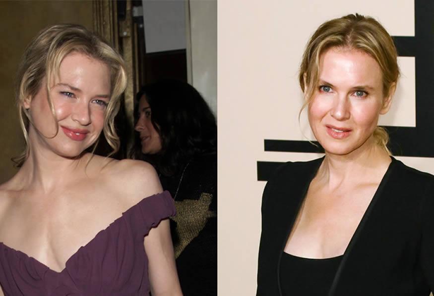 La transformación de Renée Zellweger