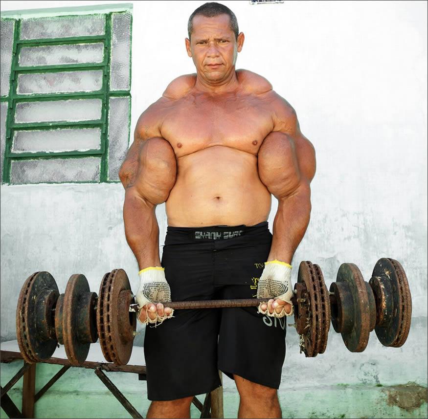 musculos-de-aceite3